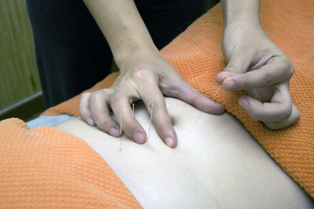 Acupuncture & Oriental Medicine